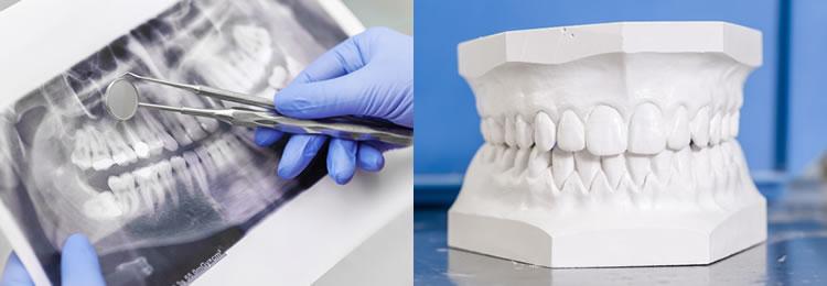 ③残りの歯を含めた総合的な歯科治療
