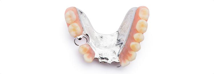 ②自費の入れ歯